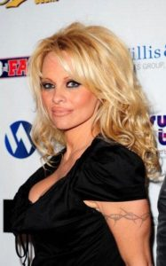 pamela-anderson-barb-wire-tatto-removal
